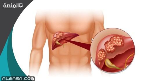 تجربتي مع ارتفاع انزيمات الكبد