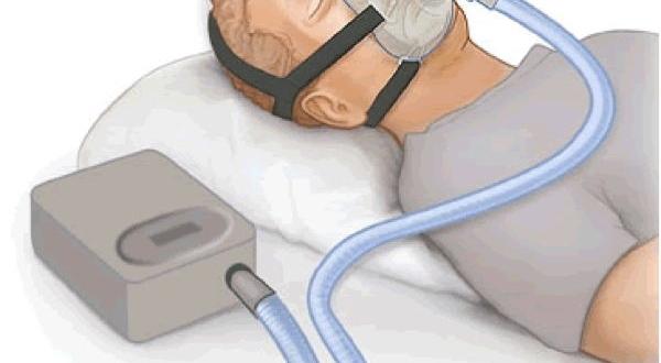 أعراض متلازمة بيكويكيان | شبكة فهرس