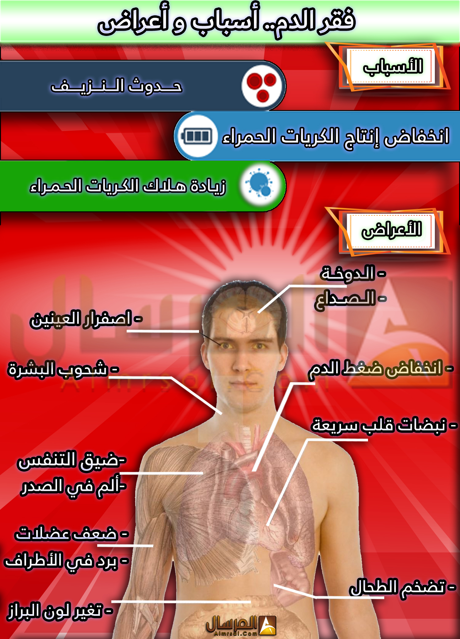 اعراض فقر الدم الحاد عند النساء