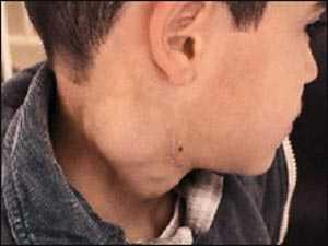 اعراض و علاج سرطان الغدد الليمفاوية المرسال