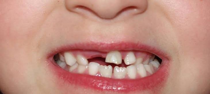 كيف اعرف الأسنان اللبنية من الدائمة المرسال