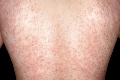 تفسير حلم مرض جلدي في المنام