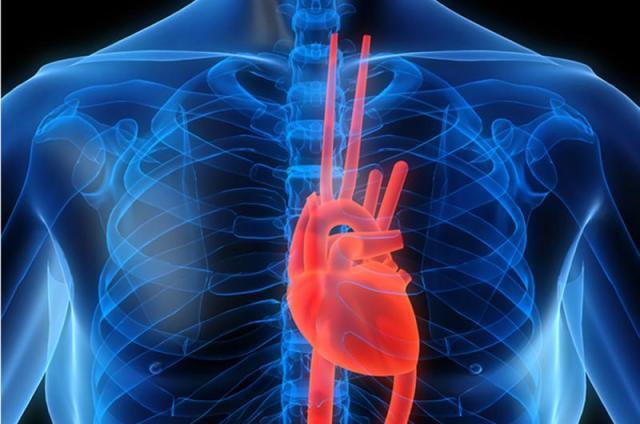 مرض قلب