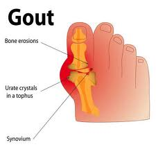 Gout and preventions