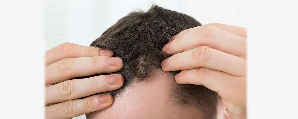 Resultado de imagen para alguien aplicandose crema en el cuero cabelludo