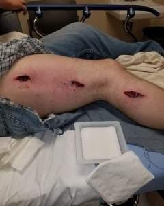 Negligent Discharge into leg