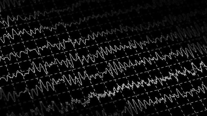 tech-is-rewiring-your-brain-brain-eeg-activity-graph