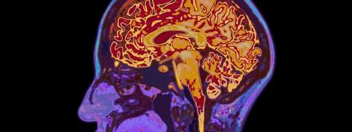 anxiety_brain_scan