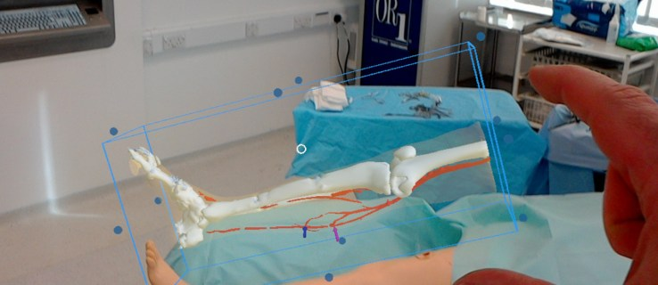 How Microsoft is getting under the skin of surgery with HoloLens