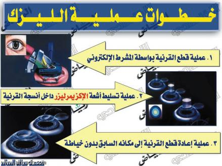 جريدة الرياض عمليات الليزك والليزر تجميلية وليست علاجية