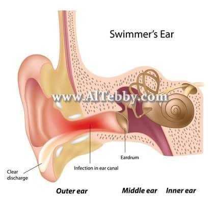 دواء drug التهاب الأذن الخارجية Otitis Externa