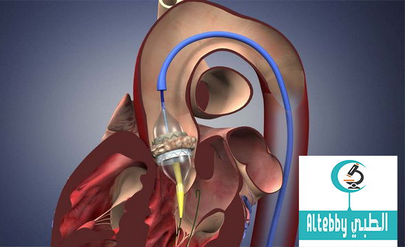 استبدال صمام القلب آمن بواسطة القسطرة القلبية