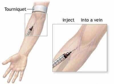 كيفية الحقن الوريدي Intravenous Injection
