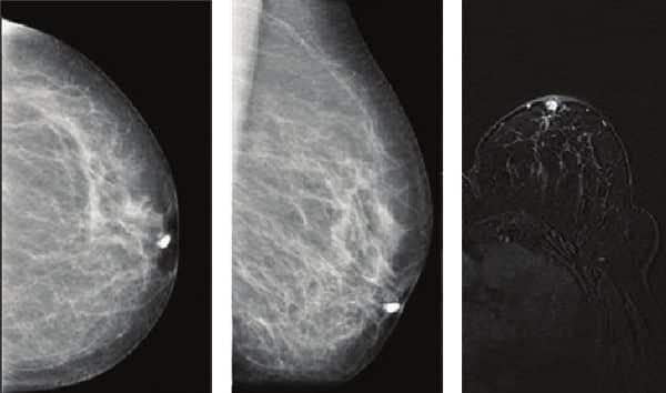 سیلان الحلمة Nipple Discharge