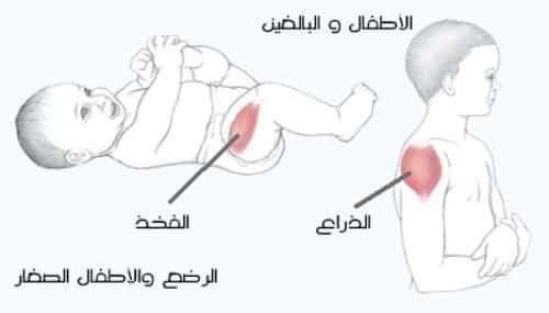 كيفية الحقن العضلي