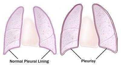 التهاب الغشاء البلوري الجاف Dry Pleurisy