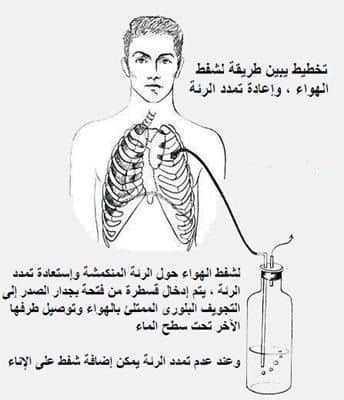 استرواح الصدر Pneumothorax 3