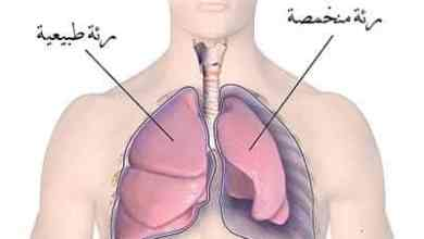 استرواح الصدر Pneumothorax