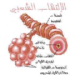 الالتهاب الشعبى الحاد Acute bronchitis