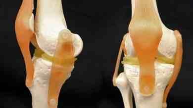 """""""طباعة"""" ناجحة لغضروف اصطناعي لمفصل الركبة"""