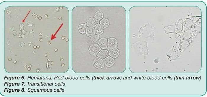 الخلايا البشرية والحرشفية