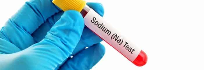 تحليل الصوديوم (Na) في الدم