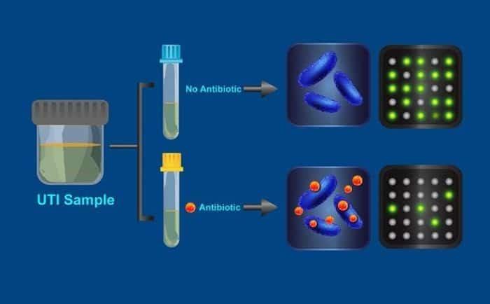 اختبار يكشف البكتيريا المقاومة للمضادات الحيوية في نصف ساعة