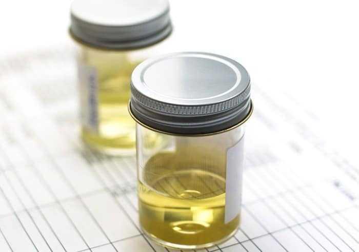 اختبار الكلوريد (Cl) في البول