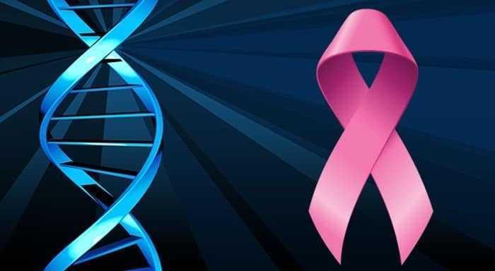 الفحص الجيني لسرطان الثدي - BRCA gene test