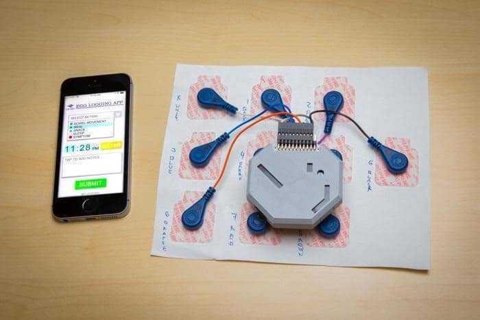 تطوير جهاز قابل للارتداء لمراقبة نشاط المعدة على مدار 24 ساعة