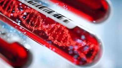 من الناحية النظرية.. اختبار جديد للدم قد يُساعد في التنبؤ بخطر الوفاة خلال الـ10 سنوات القادمة!