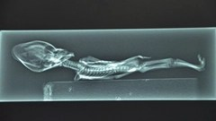 X-Ray of the alien humanoid body found in Chile