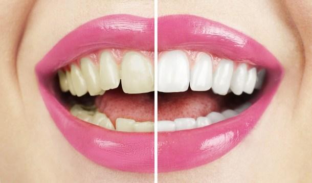 zubni kamen 2