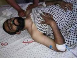 الشهيد الـ 60.. استشهاد عمر أبو فول متأثراً بإصابته برصاص الاحتلال شرق غزة