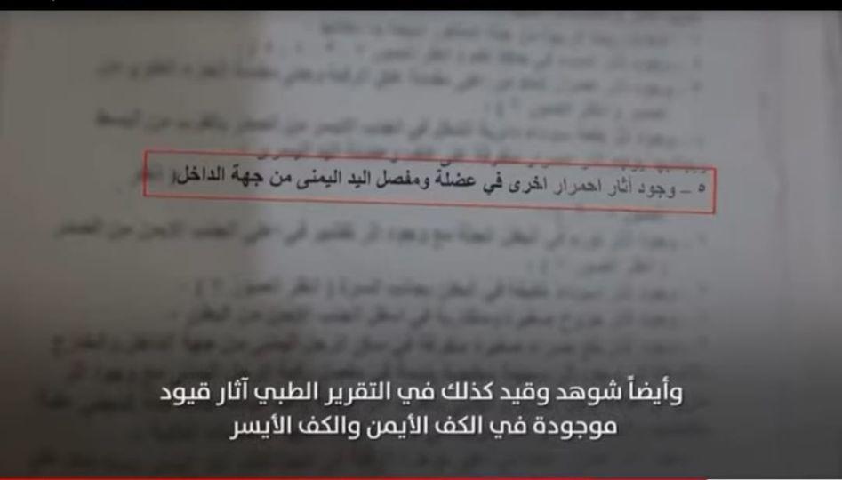بالصور.. شاهد جثة عبد الملك السنباني وآثر التعذيب الفضيع على جسمه (تقرير مع الصور)