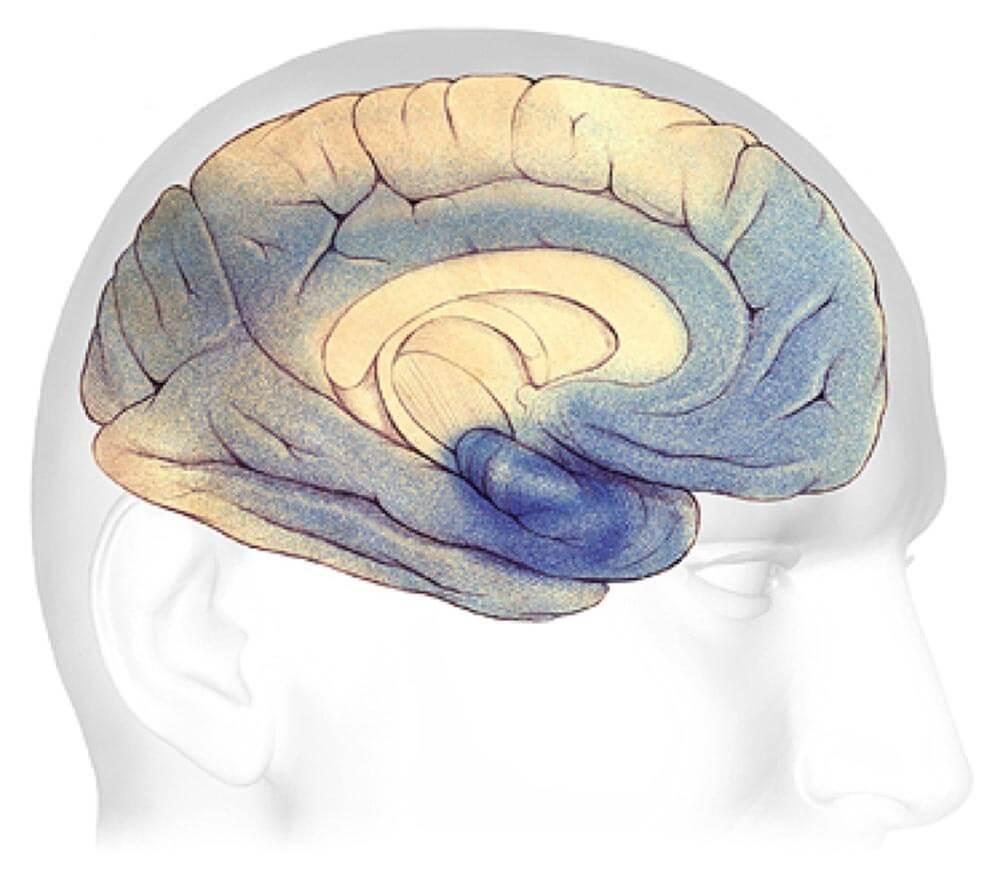 Severe Alzheimer's Stage