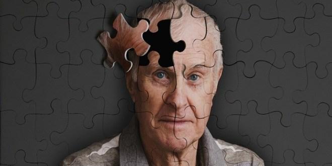 اكتشاف الحلقة الشريرة بالدماغ يعطى أملا لمرضى ألزهايمر