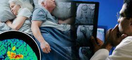 الزهايمر.. تعرف على 4 أمراض تسببها قلة النوم