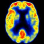 Predecir el declive cognitivo mediante PET