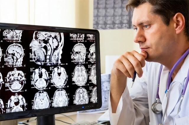 Hábitos de vida saludables que pueden prevenir las demencias vasculares. Responde Graham Stokes, experto en demencias de Bupa (SANITAS) Demencias Celilares