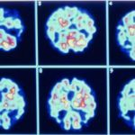 Imágenes de un cerebro con alzhéimer. / AGE FOTOSTOCK