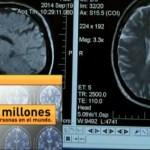 El 80% de las Personas que Padecen Alzheimer Leve no lo Sabe