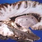 Cambios en la sustancia blanca del cerebro y deterioro cognitivo