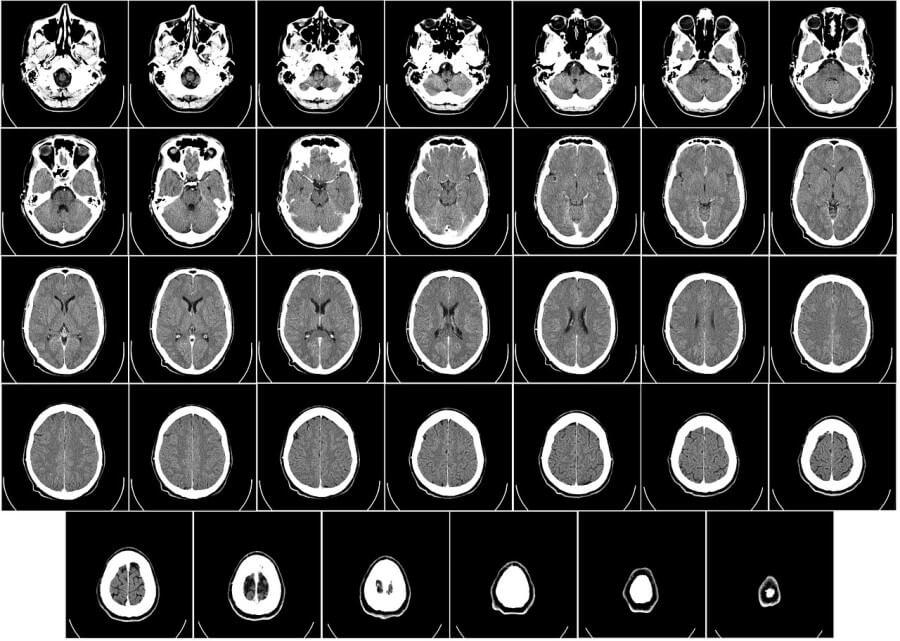 23 Síntomas Alzheimer