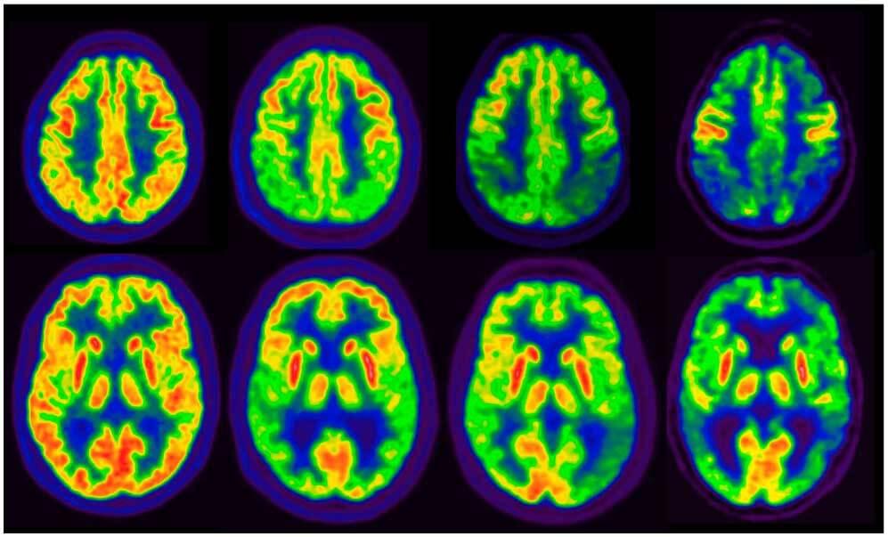 Imágenes PET con 18 F-FDG de la progresión de la neurodegeneración en la EA. De izquierda a derecha: imagen normal, deterioro cognitivo ligero secundario a EA, fase inicial de demencia por EA y fase avanzada de demencia por EA (cortesía de la Clínica Universidad de Navarra, Pamplona).