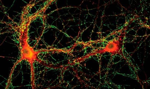 Últimos descubrimientos sobre la Memoria (Muy Interesante) Sinapsis observada por microscopía epifluorescente. Crédito: Pietro de Camilli, Universidad de Yale