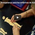 Primeros Ensayos con Aducanumab en Pacientes con Alzheimer
