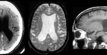 ¿Se Diagnostica Mal la Enfermedad de Alzheimer? Hablamos de Hidrocefalia.
