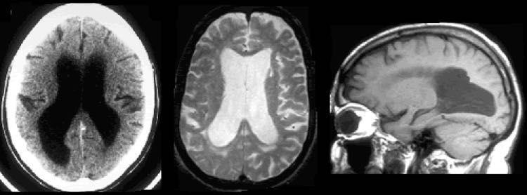 Hablamos de Hidrocefalia de presión normal
