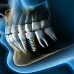 Implantes dentales….¿Qué se siente con ellos?
